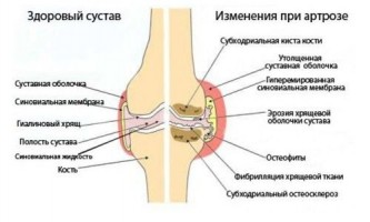 Причини захворювання і лікування артрозу препаратами
