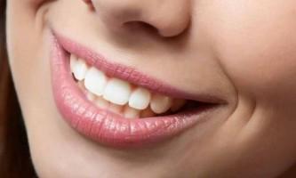 Професійне чищення зубів