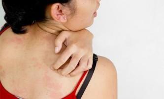Прояви і лікування герпетиформного дерматиту
