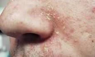 Себорейний дерматит на ліце- лікування, причини