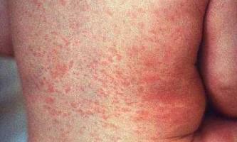 Симптоми краснухи у дітей, діагностика та лікування