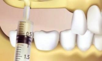 Синус-ліфтинг   кісткова пластика при протезуванні зубів