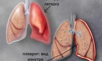 Сухий плеврит: симптоми і лікування