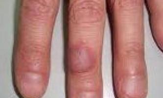 Травматичний дерматит