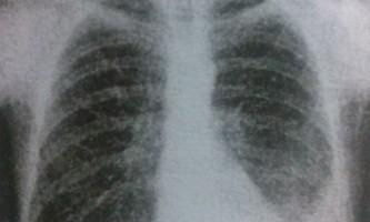 Туберкульозний плеврит