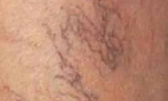 Варикозне розширення вен малого тазу, яєчок (варикоцеле), матки, стравоходу і їх лікування