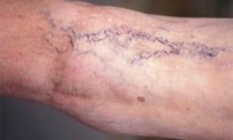 Варикозне розширення вен на ногах