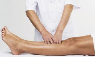 Варикозне розширення вен нижніх кінцівок: лікування препаратами
