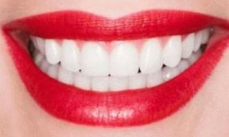 Відновлення зуба