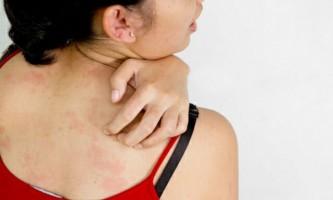 Висипання на шкірі з сверблячкою: як це лікувати?