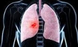 Затяжна пневмонія