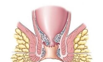 Печіння в задньому проході як один із симптомів геморою